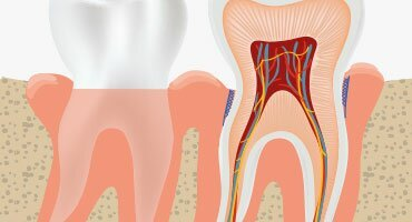 Gum disease - what it is, how it evolves