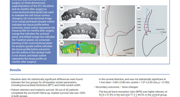 JCP Digest considers benefits of connective-tissue grafts as adjunct to immediate implant placement